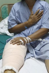 Grant to Support Hip and Knee Replacement Failure Research