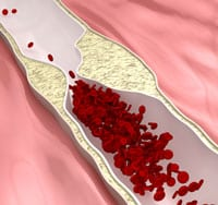 Stroke Risk Strongly Associated with Coronary Atherosclerosis, Study Says