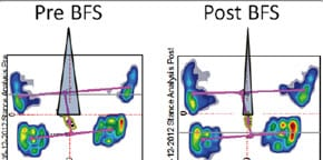 Study Targets Insole's Ability to Decrease Foot, Knee, and Back Pain