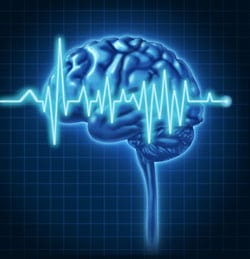 Biomarkers Highlight Increased Risk of Silent Stroke, Researchers Say