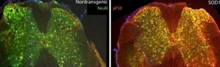 Implications of Genetic Mutation May Contribute to ALS Development