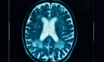 Device May Hold Promise in Wireless Brain Trauma Diagnoses
