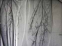 RA May Significantly Elevate Risk of Potentially Fatal Leg and Lung Blood Clots