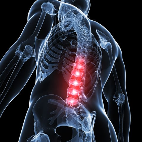 Treadmill Training May Promote Recovery After a Spinal Cord Injury
