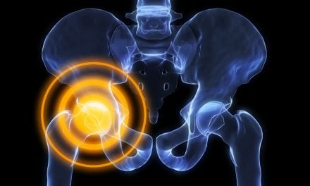 Hip Implant Study Indicates Potential Area of Concern in Current Regulation Process