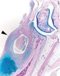 Researchers Spotlight Gene Variant's Role in the Development of Arthritis