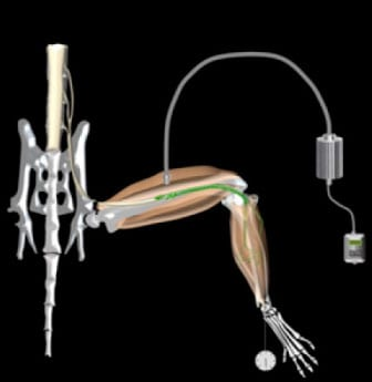 Study of Light-Responsive Motor Neurons Targets Restoration of Function to Paralyzed Muscle