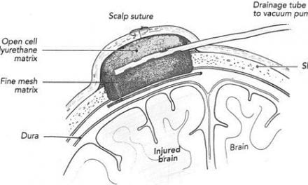 Vacuum Pressure May Limit Tissue Damage Post-TBI, Researchers Say