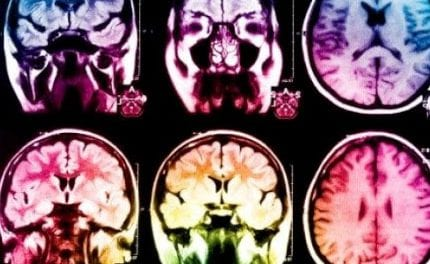 Study Pinpoints Mechanism Through Which Brain Produces New Nerve Cells Post-Stroke