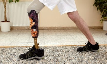 Resource Aims to Help Amputees Make Informed Decisions Post Limb-Loss