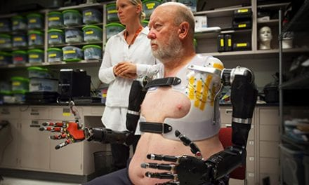 Amputee Uses Thoughts to Control Bionic Arms