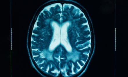Suicide Risk Doubles Among Stroke Patients 2 Years Post-Stroke