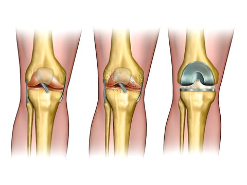 VA Research Finds Kinematic Knee Replacement Improves Postsurgery Pain and ROM