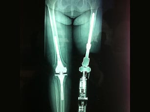 Osseointegration for Amputees Topic of April 3 Lecture at Helen Hayes Hospital