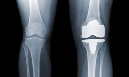Total Joint Replacement More Problematic for Men