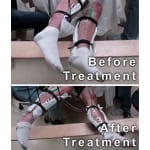 Noninvasive Spinal Cord Stimulation Reportedly Helps Paralyzed Men Move Legs