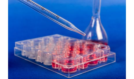 Embryonic Stem Cell Research May Pave the Way for Patient Therapies