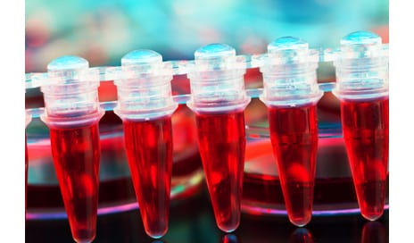 Stem Cell Therapy May Help Treat Critical Limb Ischemia