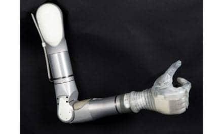 Mobius Bionics Launches LUKE Integrated Prosthetic Arm