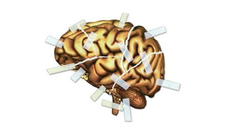 Exercise's Positive Effects on Brain Possibly Linked to Better Stroke Recovery