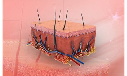Biomaterial Demonstrates Prompting of Skin Cells to Heal Chronic Wounds