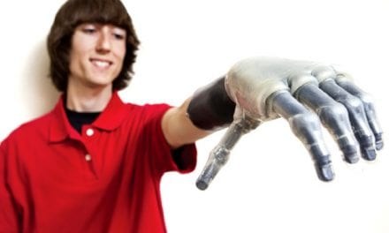 Trends in Prosthetic Limb Technology