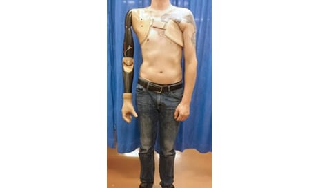 Scientists Develop Prosthetic Arm Technology They Suggest Can Detect Signals from the Spinal Cord