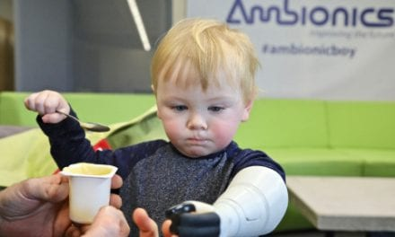 Ambionics Founder Builds Prosthesic Arm for Son Using Stratasys 3D Printing Technology