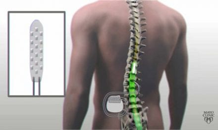 Spinal Cord Stimulation Helps Paralyzed Patient Move His Legs