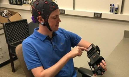 Mind-Controlled Ipsihand Aims to Retrain the Brain to Move Paralyzed Hands