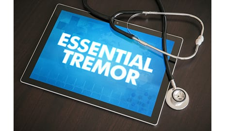 Essential Tremor Educational Forum Scheduled for August 26