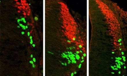 Study Helps Redefine Role of Spinal Sensory Cells