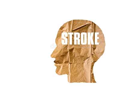 Diagnosis and Treatment of Ischemic Stroke in Young Women Requires a Multidisciplinary Approach