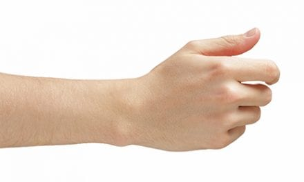 MU Researchers Receive DOD Grant to Expand Study of Hand Transplant Effects