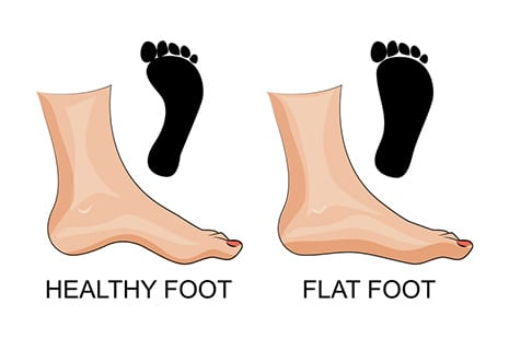Flatfoot Reconstruction Can Be Effective Even for Older Patients, Per HSS Study
