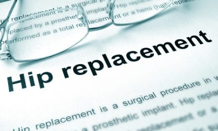 Hip Replacement May Increase Life Expectancy, Per Study