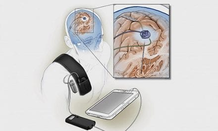 Fully Implanted, Self-Tuning DBS System Could Help Manage Parkinson's Symptoms