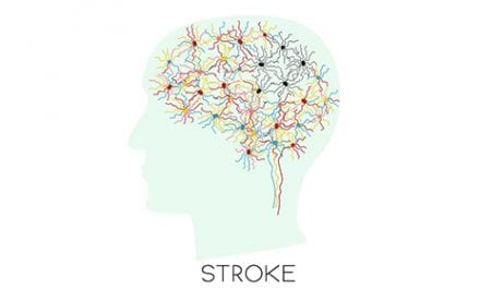 Therapy Combining BCI and FES May Boost Post-Stroke Motor Recovery