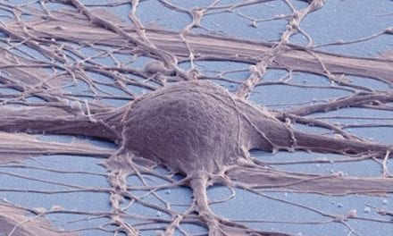 Creation of Neural Stem Cell Line a Possible Replacement Strategy for SCI Repair