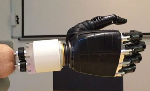 Forearm Amputees Achieve Wrist-Like Movement Via Artificial Joint