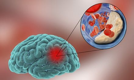 Ischemic Stroke Recovery Worse If PATG Gene Present, Study Notes