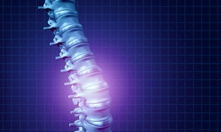 Tissue-Engineered Replacement Discs to Treat Spinal Pain Studied in Goats