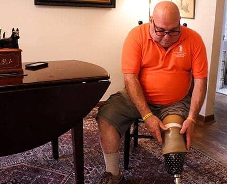 TMR Procedure to Help Reduce Phantom Limb Pain Described in Study