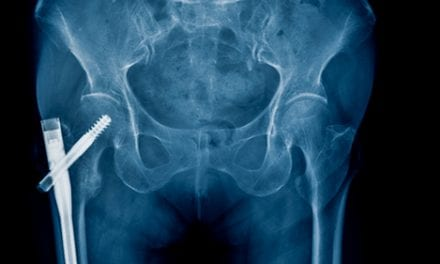 Hip Fracture Surgery is Risky, So Choose Patients Carefully, Researchers Note