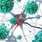 AFM Patients Benefit from Nerve Transfer Surgery