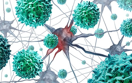 AFM Patients Benefit from Nerve Transfer Surgery