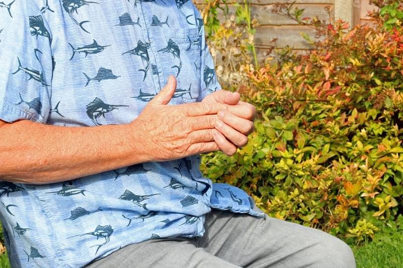 Heberden's Nodes May Indicate Knee Osteoarthritis Damage