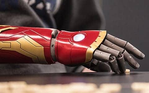 Hanger Clinic Now Offering Open Bionics Hero Arm to US Patients