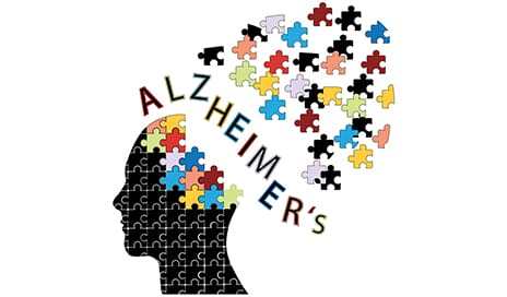 Researchers ID Alzheimer's Brain Changes Years Before Symptoms Appear