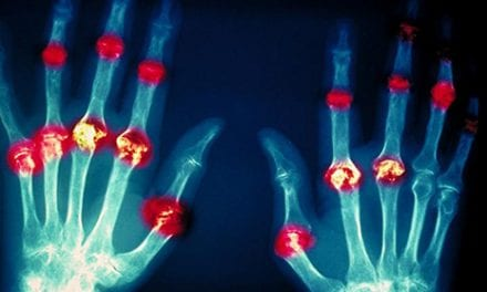 RA and Lupus Tissue Damage Clues Lay Groundwork for Potential Treatments